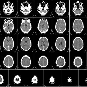 computer-tomography-62942_1920